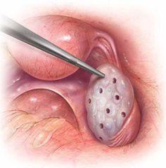 Яичники - Поликистоз яичников - Яичниковый дриллинг - Здоровье и Стиль Жизни Женщин