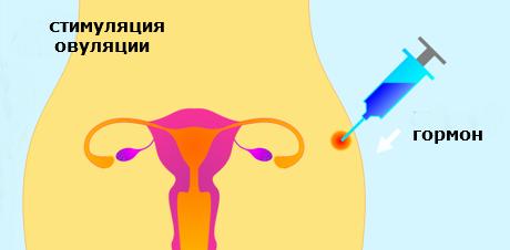 Синдром гиперстимуляции яичников - Здоровье и Стиль Жизни Женщин