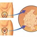 ВПЧ симптомы и пути распространения