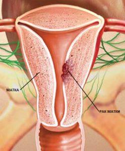 Лечение рака эндометрия