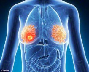 Скрытые признаки рака молочной железы